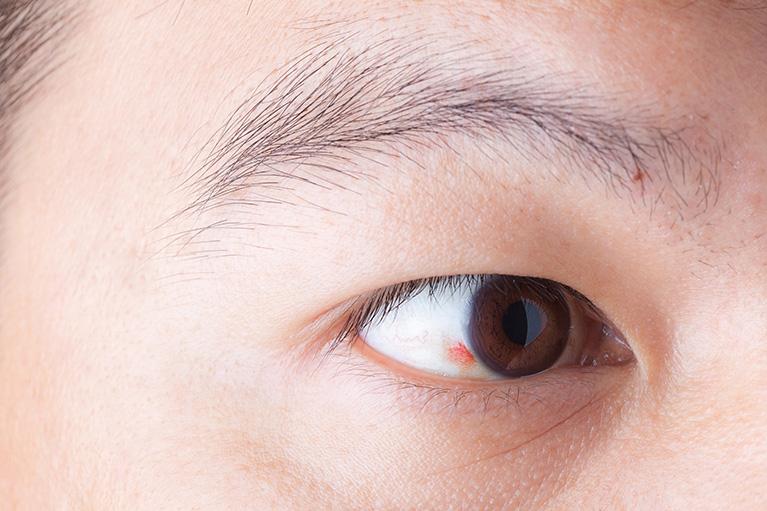 結膜炎 アレルギー 性